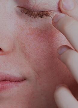 Skora wrazliwa i alergiczna